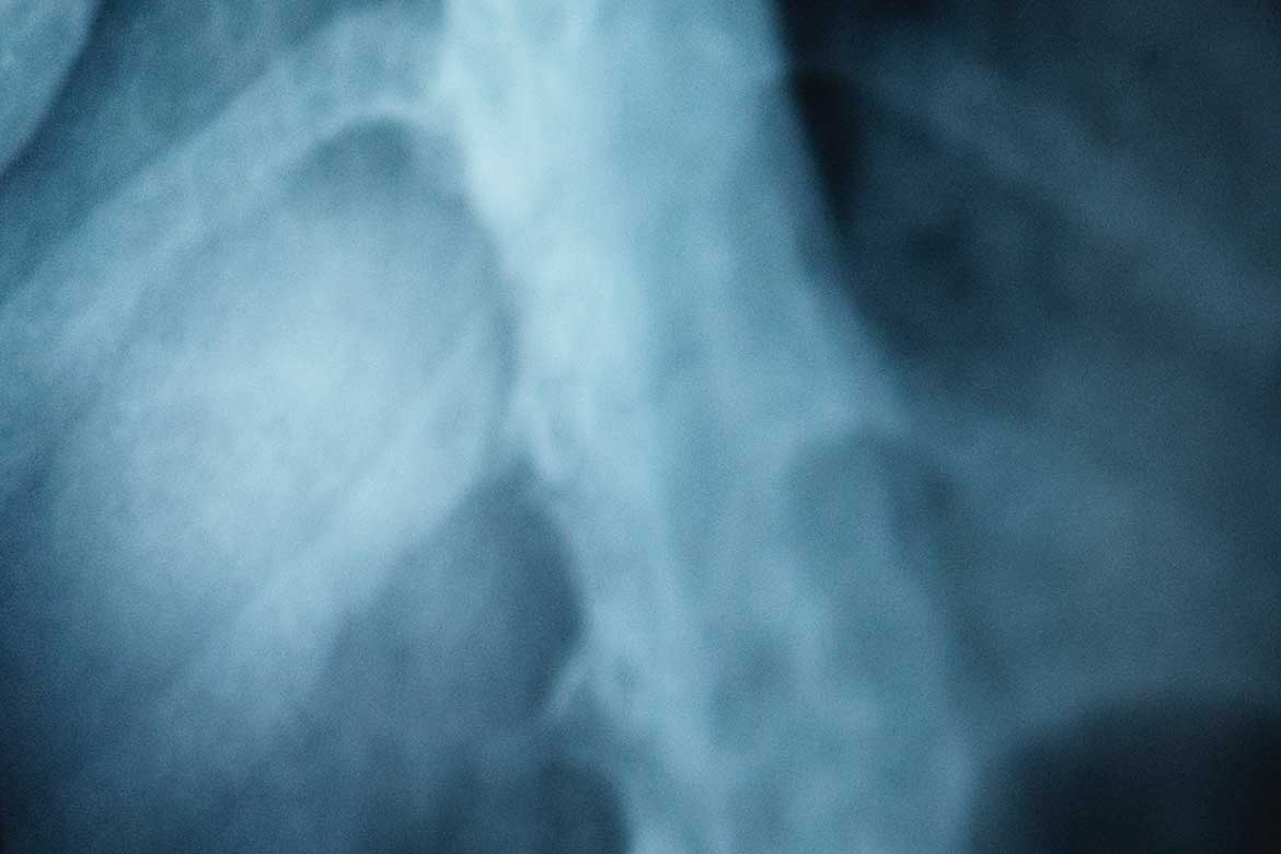 What Happens To Your Lungs When You Breathe Asbestos image